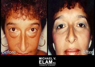 Eyelid Surgery 2