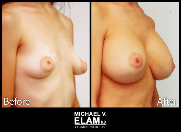 Mastopexy (Breast Lift) 1