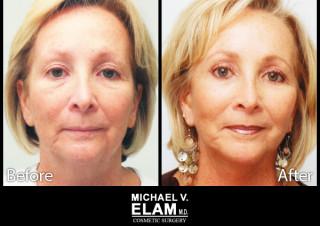 Eyelid Surgery 4