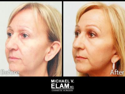 Eyelid Surgery 6