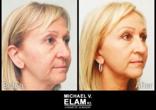 Eyelid Surgery 7