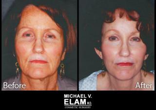 Laser Skin Resurfacing 2