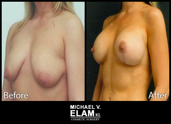 Mastopexy (Breast Lift) 4