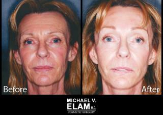 Laser Skin Resurfacing 3