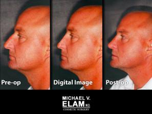 Digital imaging 10