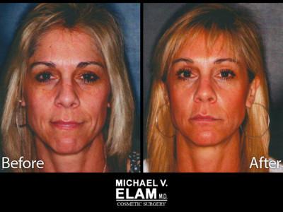 Laser Skin Resurfacing 4