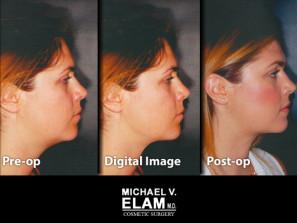 Digital imaging 4