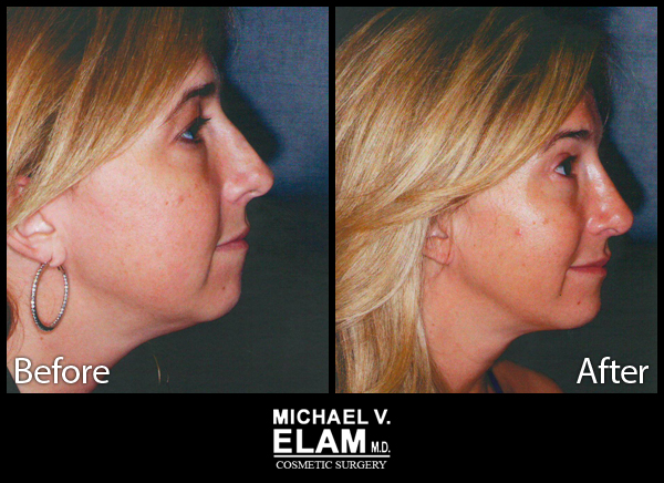 Chin Augmentation 4