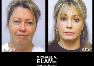 Eyelid Surgery 607