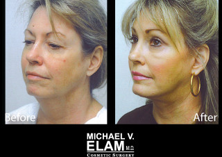 Eyelid Surgery 606