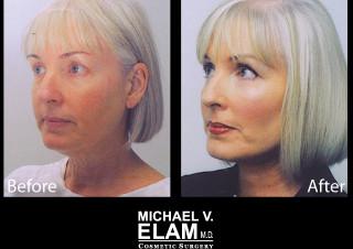 Eyelid Surgery 604