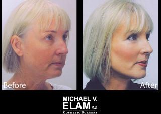 Eyelid Surgery 3