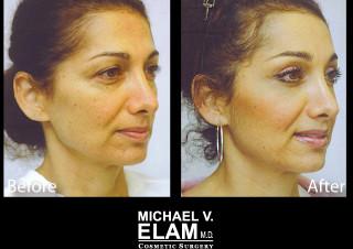 Eyelid Surgery 1