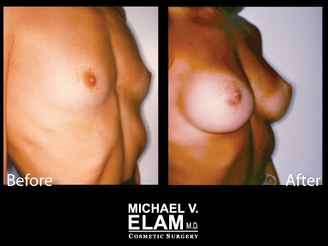 Breast Augmentation16