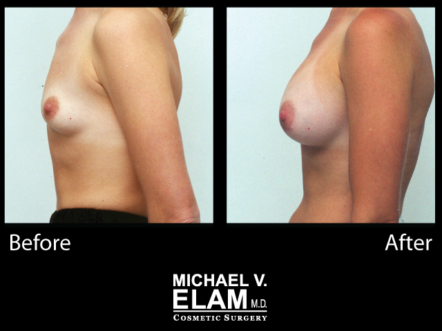 Breast Augmentation14