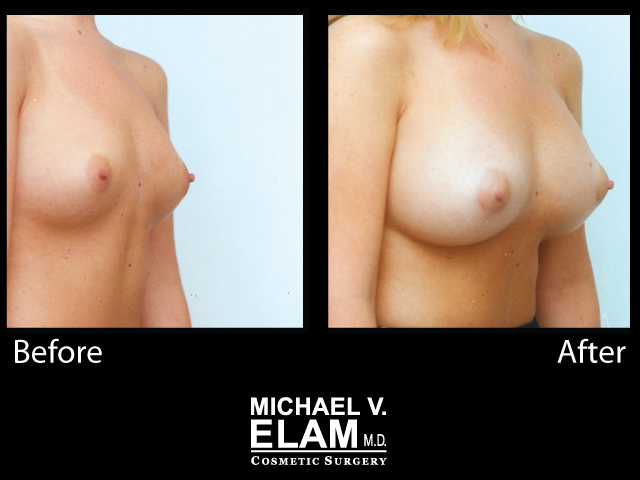 Breast Augmentation13