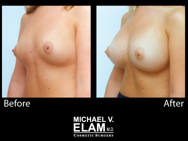Breast Augmentation12