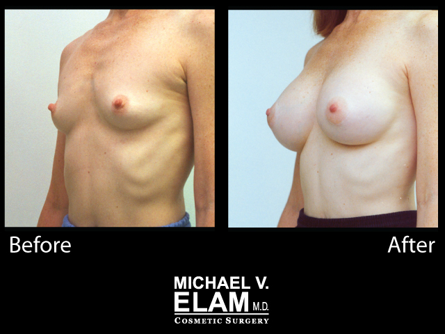 Breast Augmentation11