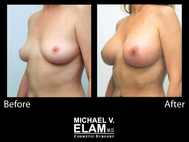 Breast Augmentation10
