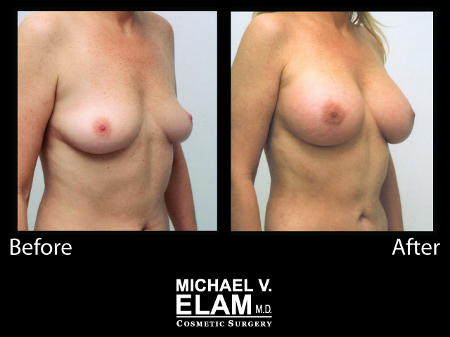 Breast Augmentation9