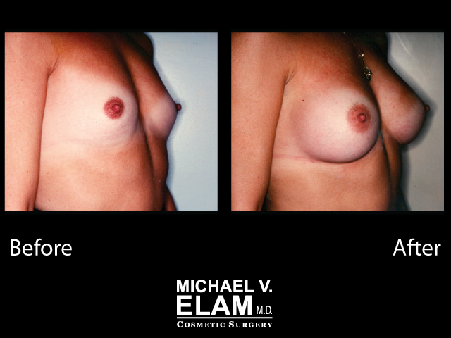 Breast Augmentation8