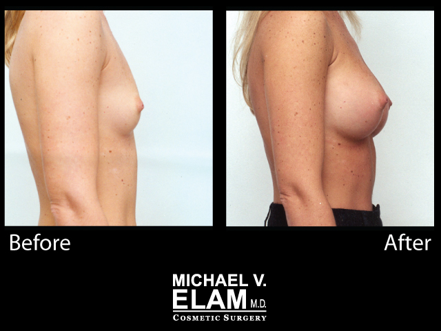 Breast Augmentation7