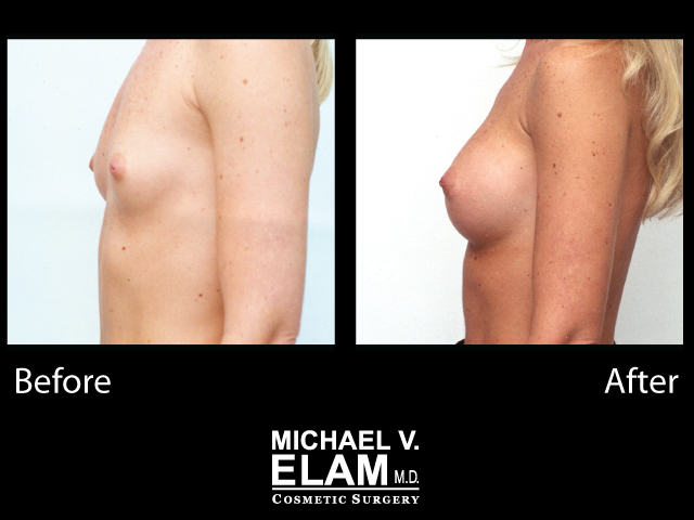 Breast Augmentation6