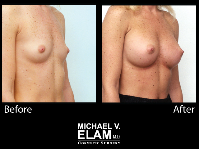 Breast Augmentation5