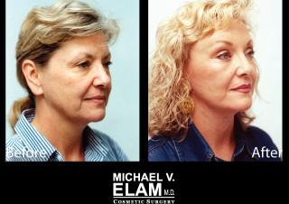Eyelid Surgery 610