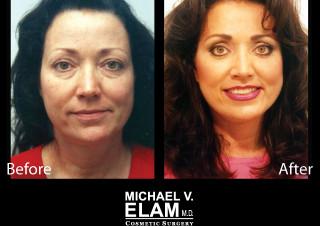 Eyelid Surgery 608