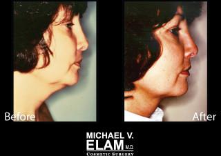 Liposuction5