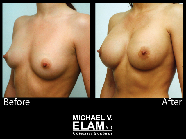 Breast Augmentation4