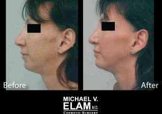 Chin Augmentation 1