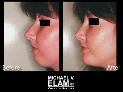 Chin Augmentation 3