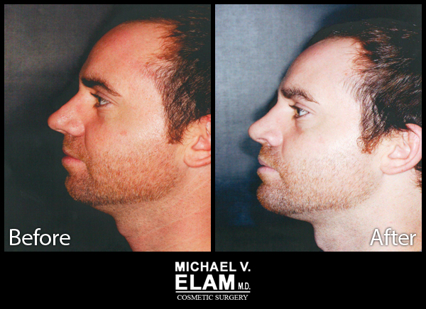 Chin Augmentation 28