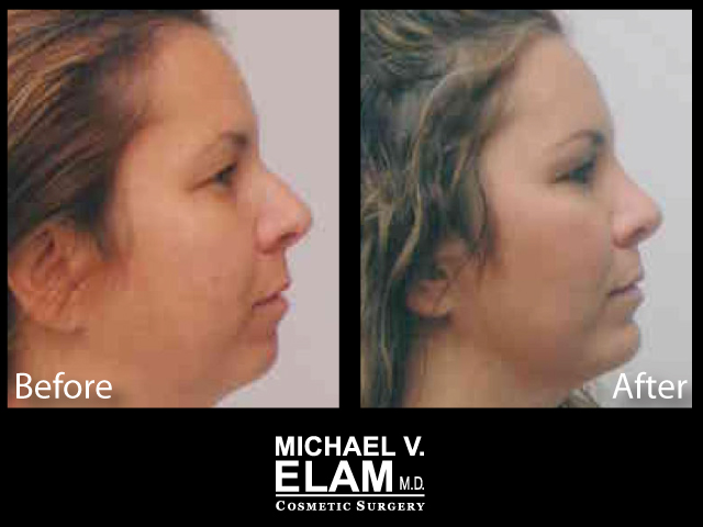 Chin Augmentation 7