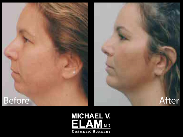 Chin Augmentation 6