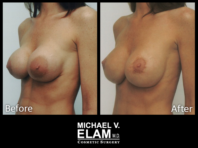 Breast Aug 405-a