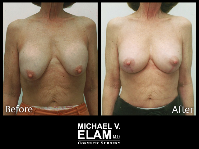 Breast Aug 415-a