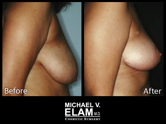 Breast Aug 416-a