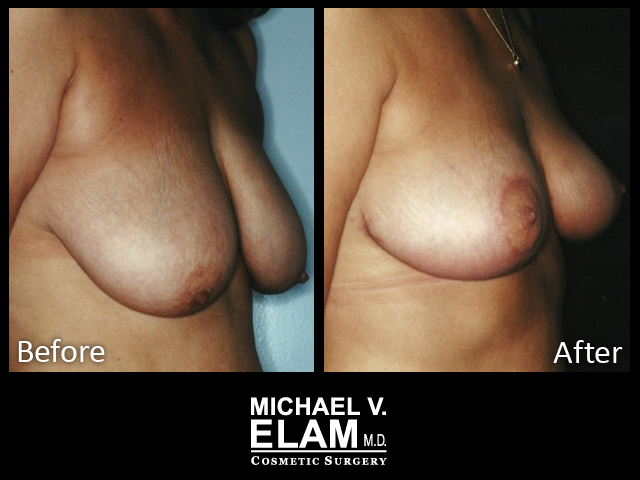 Breast Aug 416-b