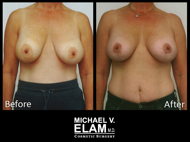 Breast Aug 430-a