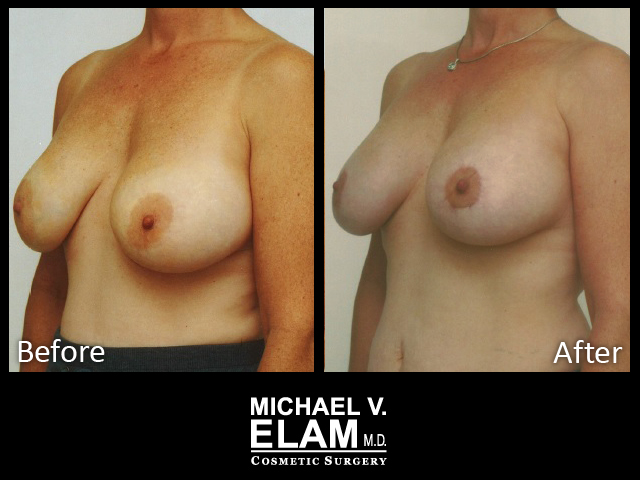 Breast Aug 430-b